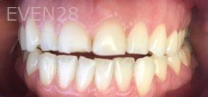 Rozita-Nosratabadi-Dental-Bonding-before-1