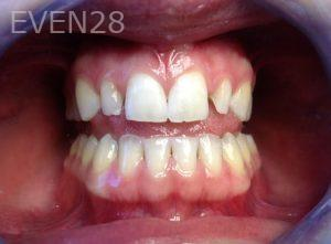 Rozita-Nosratabadi-Dental-Bonding-before-2