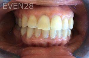 Rozita-Nosratabadi-Internal-Tooth-Bleaching-after-1