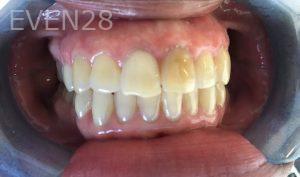 Rozita-Nosratabadi-Internal-Tooth-Bleaching-before-1
