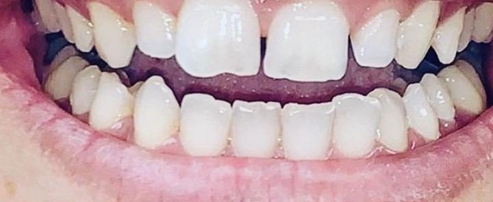 Sahar-Verdi-Gingivectomy-before-1