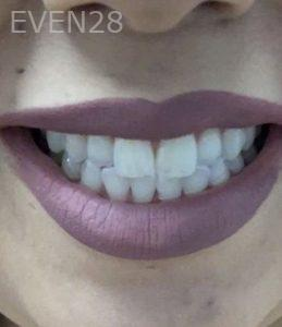 Sahar-Verdi-Teeth-Whitening-after-1