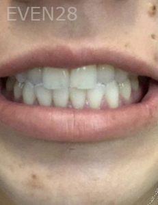Sahar-Verdi-Teeth-Whitening-before-1