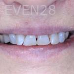 Sean-Nguyen-Smile-Makeover-before-1
