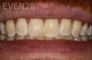 Stephen-Coates-Dental-Bonding-after-1