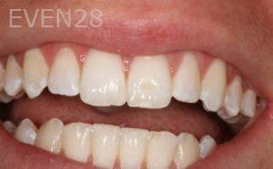 Stephen-Coates-Dental-Bonding-after-2