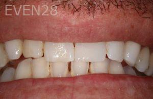Stephen-Coates-Dental-Bonding-after-3
