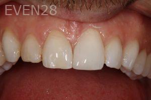 Stephen-Coates-Dental-Bonding-after-3b