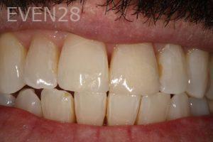 Stephen-Coates-Dental-Bonding-after-4