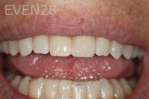 Stephen-Coates-Dental-Bonding-after-5