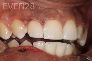 Stephen-Coates-Dental-Bonding-after-6