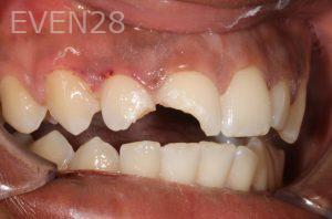 Stephen-Coates-Dental-Bonding-before-6