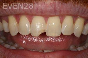 Stephen-Coates-Dental-Bonding-before-1