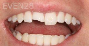 Stephen-Coates-Dental-Bonding-before-2