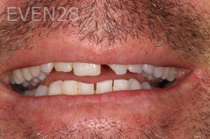 Stephen-Coates-Dental-Bonding-before-3