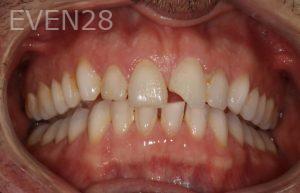 Stephen-Coates-Dental-Bonding-before-3b