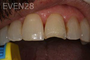 Stephen-Coates-Dental-Bonding-before-4