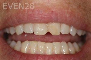 Stephen-Coates-Dental-Bonding-before-5