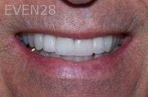 Stephen-Coates-Dental-Crowns-after-1