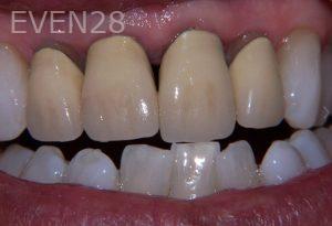 Stephen-Coates-Dental-Crowns-before-1