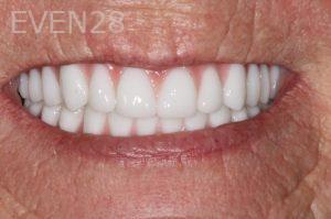 Stephen-Coates-Dentures-after-1