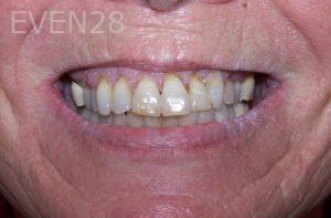 Stephen-Coates-Dentures-before-1
