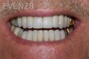 Stephen-Coates-Full-Mouth-Rehabilitation-after-1