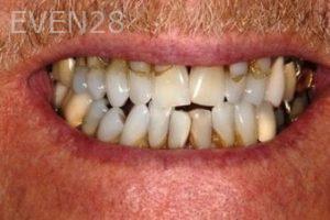 Stephen-Coates-Full-Mouth-Rehabilitation-before-1