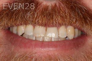 Stephen-Coates-Invisalign-Clear-Aligners-after-1