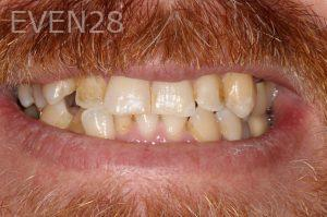 Stephen-Coates-Invisalign-Clear-Aligners-before-1