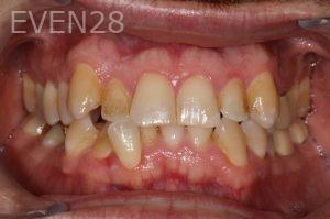 Stephen-Coates-Invisalign-Clear-Aligners-before-1b