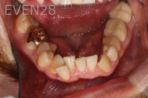 Stephen-Coates-Invisalign-Clear-Aligners-before-2b