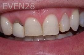 Stephen-Coates-Smile-Makeover-before-1
