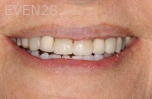 Stephen-Coates-Smile-Makeover-before-2
