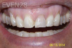 Stephen-Coates-Smile-Makeover-before-3