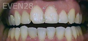 Steven-Son-Dental-Bonding-before-1