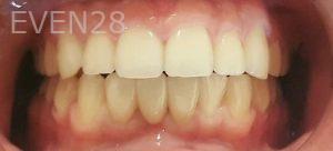 Steven-Son-Dental-Bridge-after-2