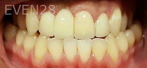 Steven-Son-Dental-Bridge-after-3