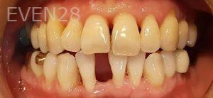 Steven-Son-Dental-Bridge-before-1