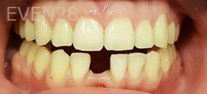 Steven-Son-Dental-Bridge-before-2