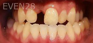 Steven-Son-Dental-Bridge-before-3