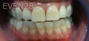 Steven-Son-Dental-Bridge-before-4