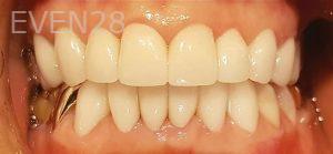 Steven-Son-Dental-Crowns-after-1