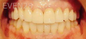 Steven-Son-Dental-Crowns-after-2