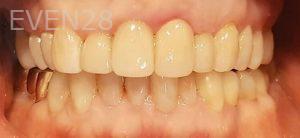 Steven-Son-Dental-Crowns-after-3
