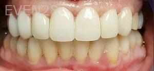 Steven-Son-Dental-Crowns-after-4