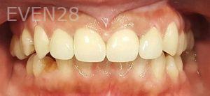 Steven-Son-Dental-Crowns-after-5