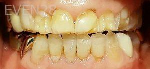 Steven-Son-Dental-Crowns-before-1