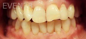 Steven-Son-Dental-Crowns-before-2