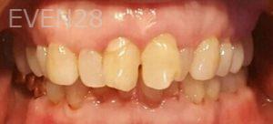 Steven-Son-Dental-Crowns-before-3